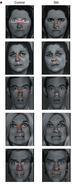 SM-doesn't follow eye pattern