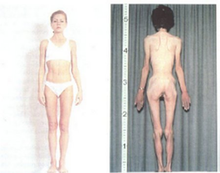 http://tecfa.unige.ch/tecfa/teaching/UVLibre/0001/bin60/epidemio/photo.jpg